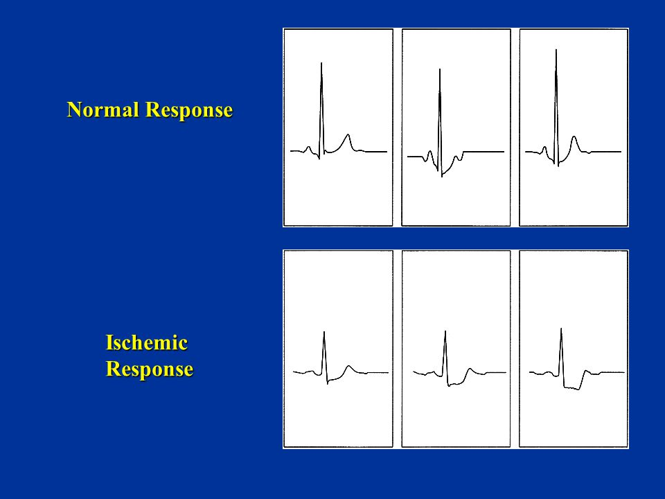 Normal Response Ischemic Response