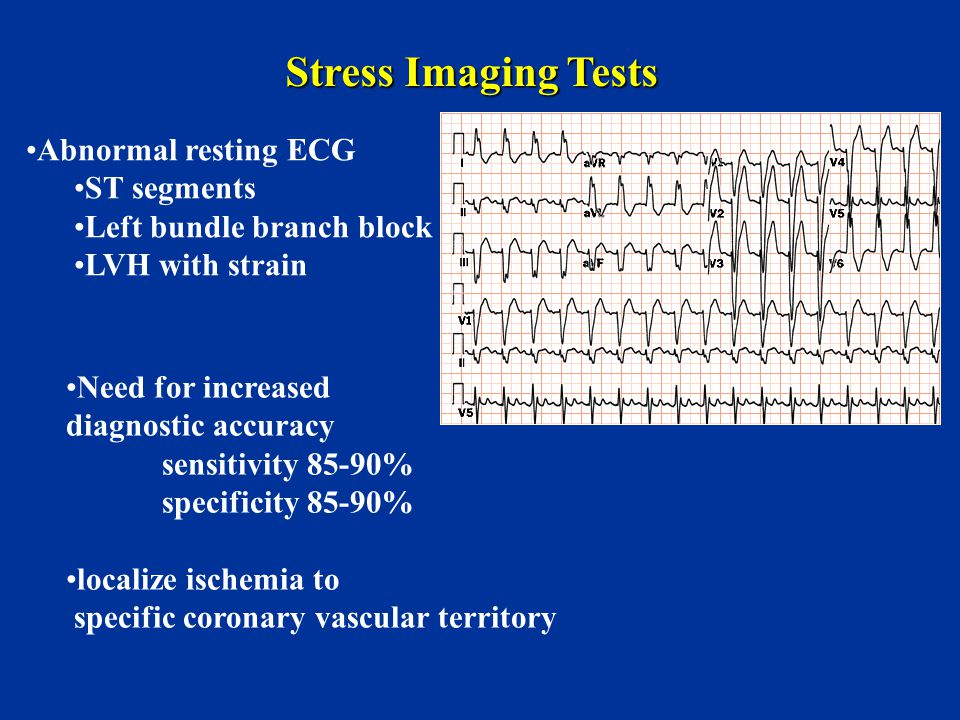 Stress Imaging Tests Abnormal resting ECG ST segments