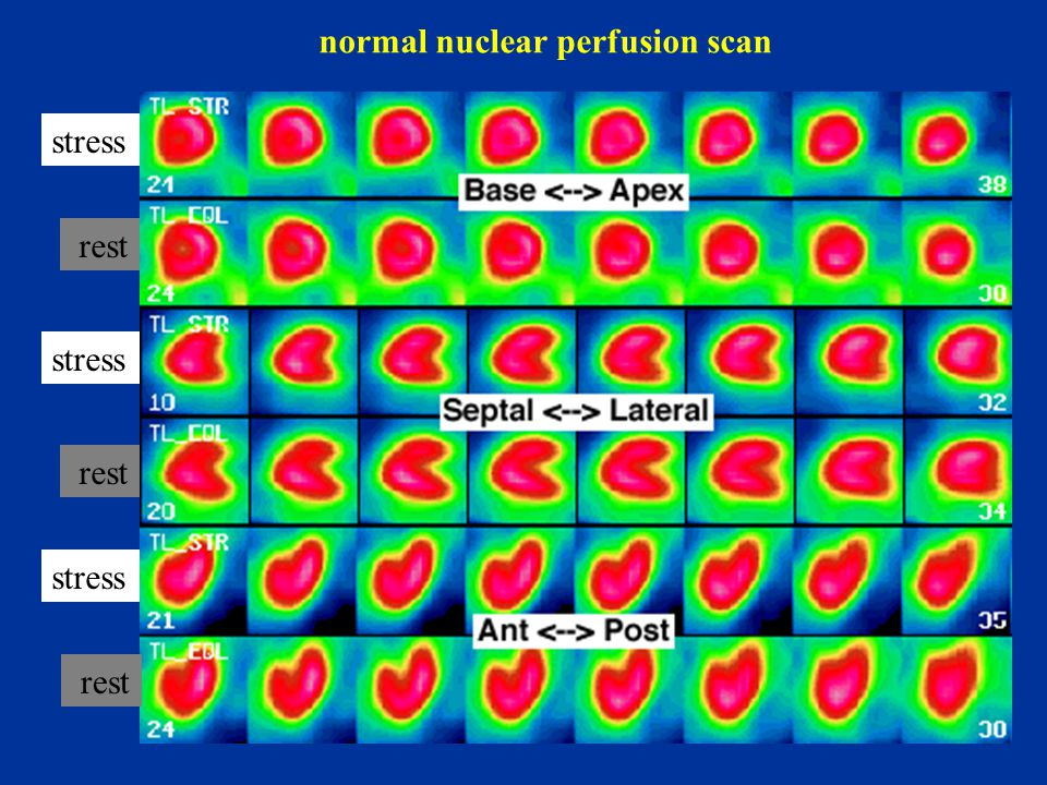 normal nuclear perfusion scan