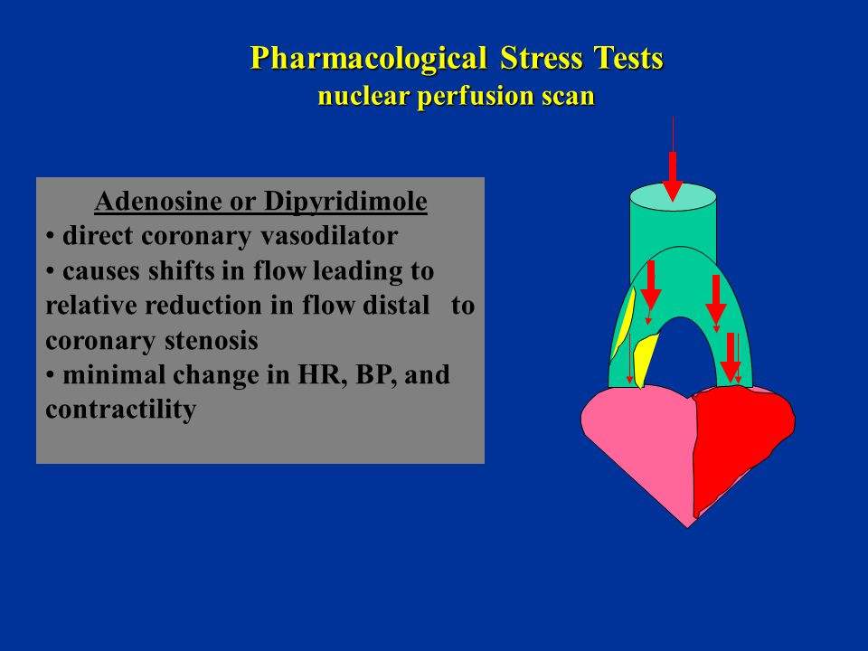 Pharmacological Stress Tests