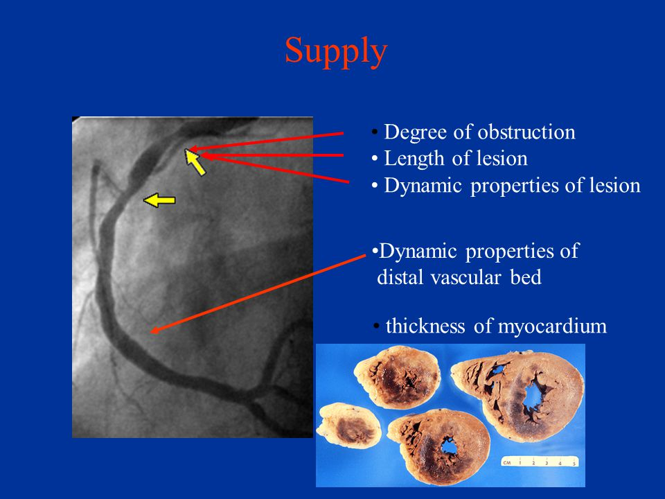 Supply Degree of obstruction Length of lesion