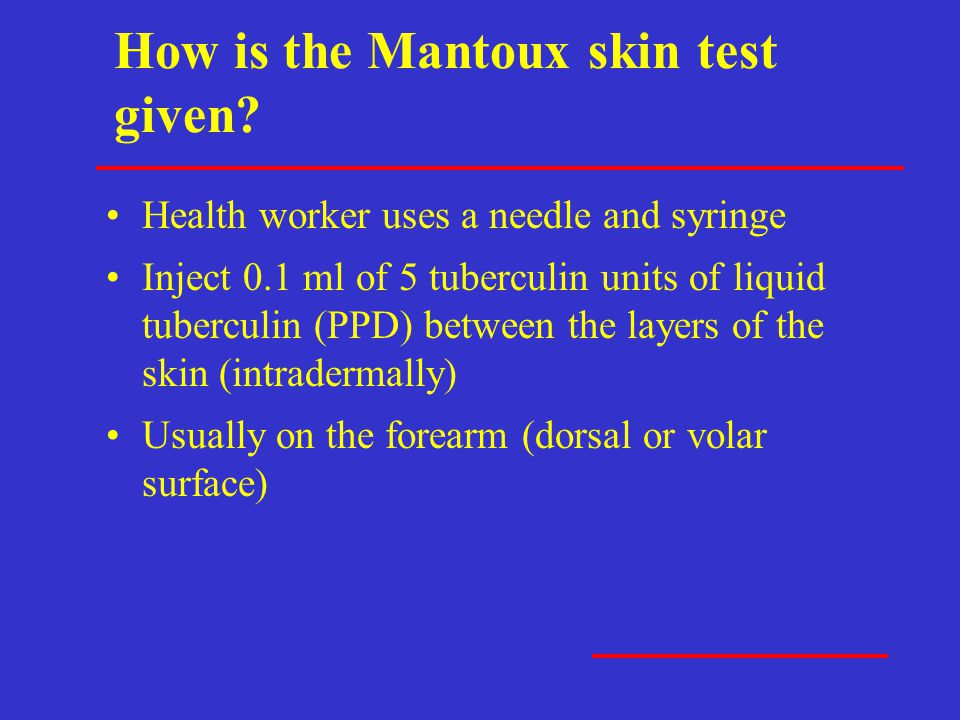 How is the Mantoux skin test given