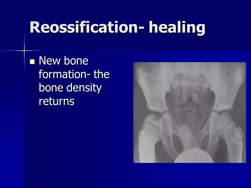 Reossification- healing