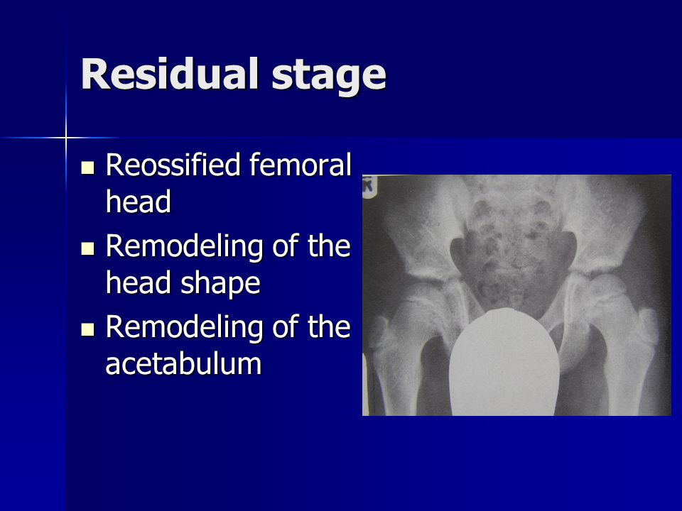 Residual stage Reossified femoral head Remodeling of the head shape