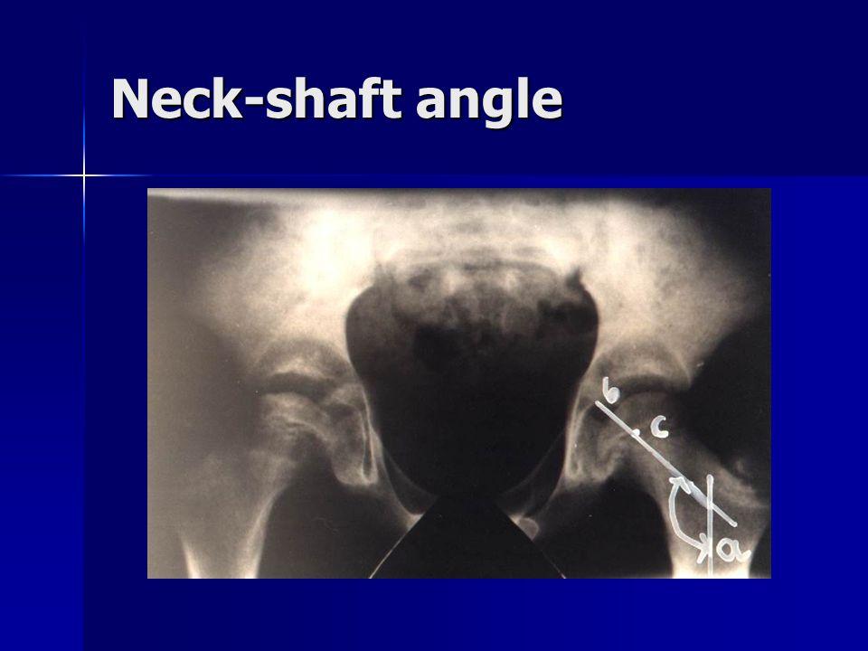 Neck-shaft angle