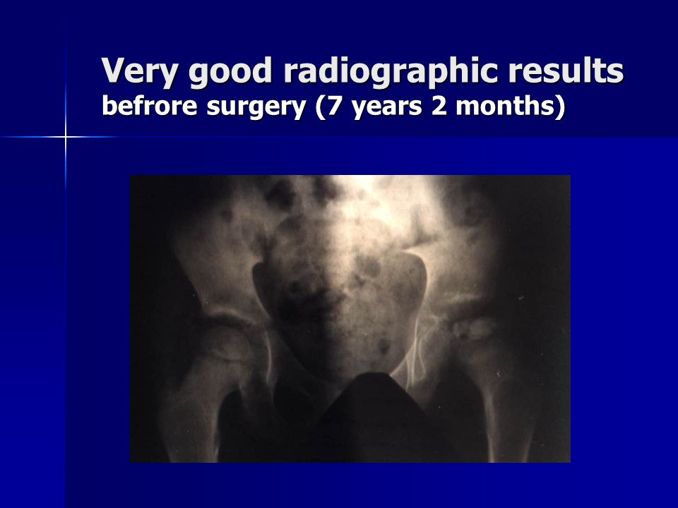 Very good radiographic results befrore surgery (7 years 2 months)