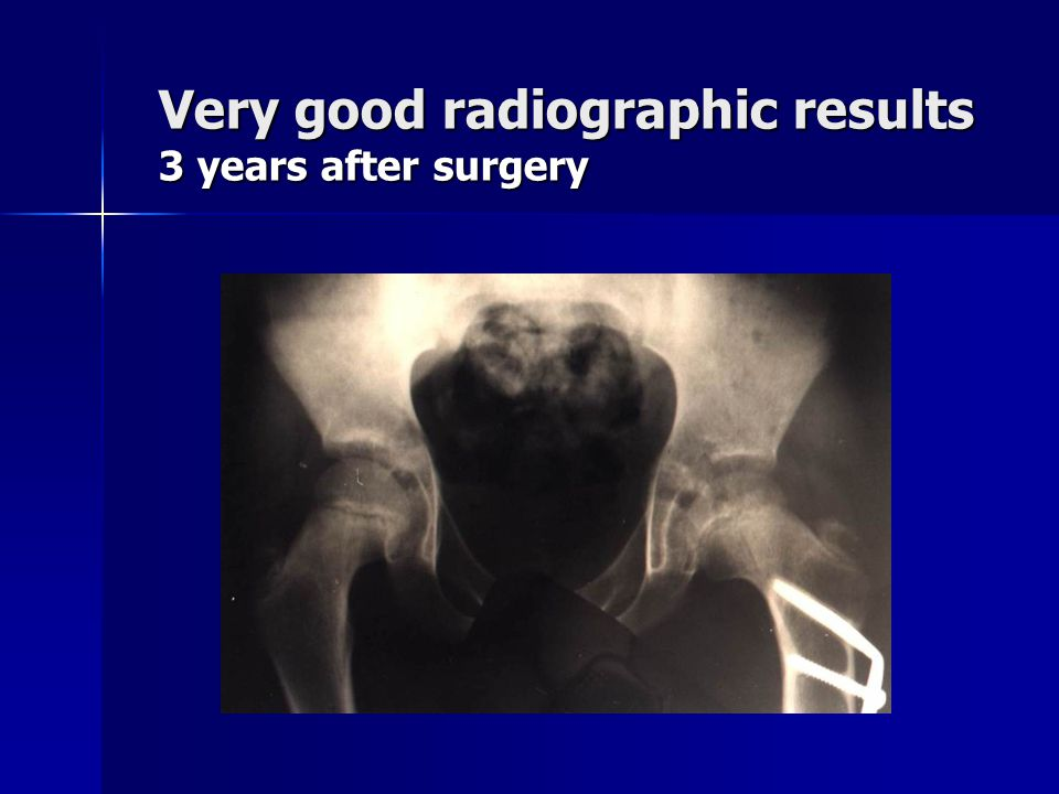 Very good radiographic results 3 years after surgery