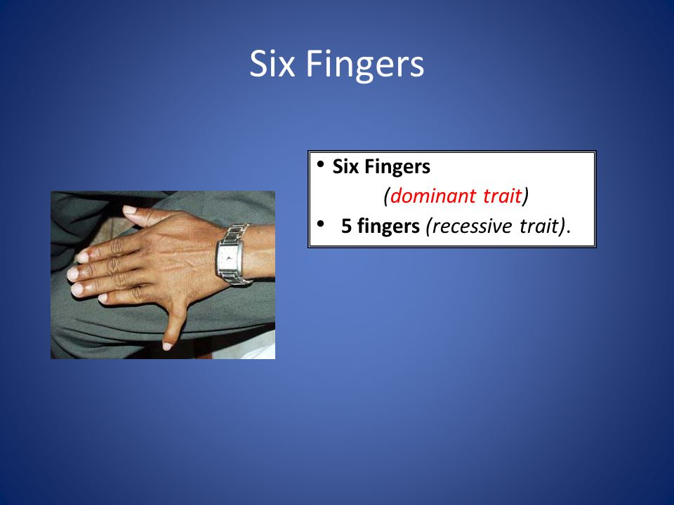 Six Fingers Six Fingers (dominant trait) 5 fingers (recessive trait).