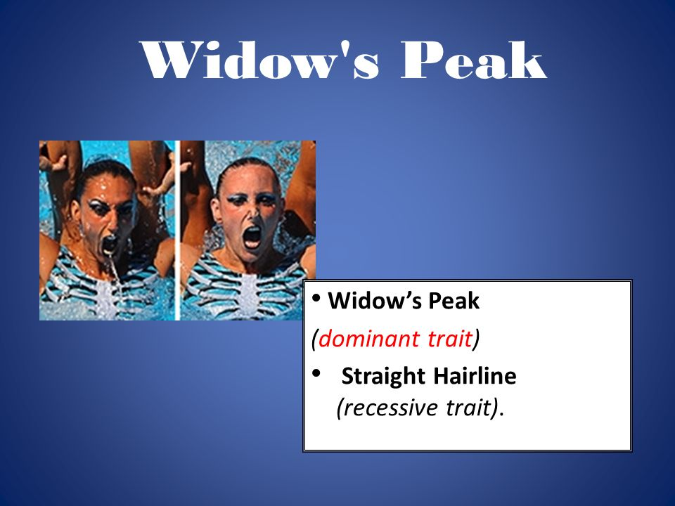 Widow s Peak Widow's Peak (dominant trait)
