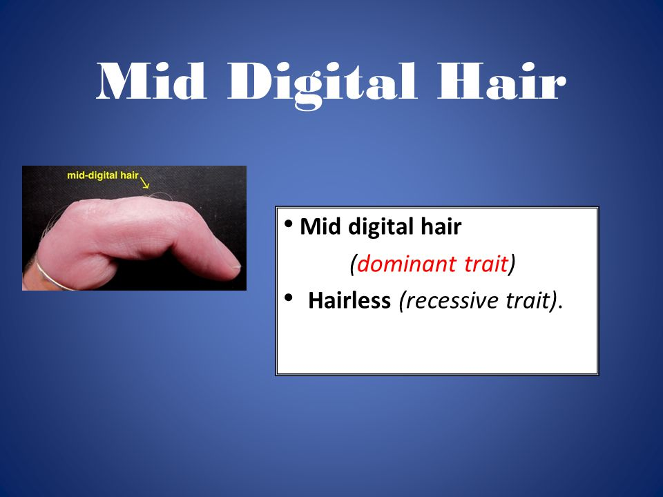 Mid Digital Hair Mid digital hair (dominant trait)