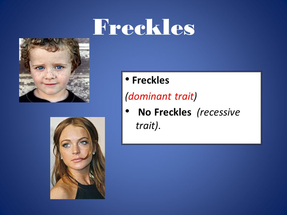 Freckles Freckles (dominant trait) No Freckles (recessive trait).