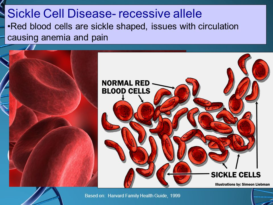 Sickle Cell Disease- recessive allele
