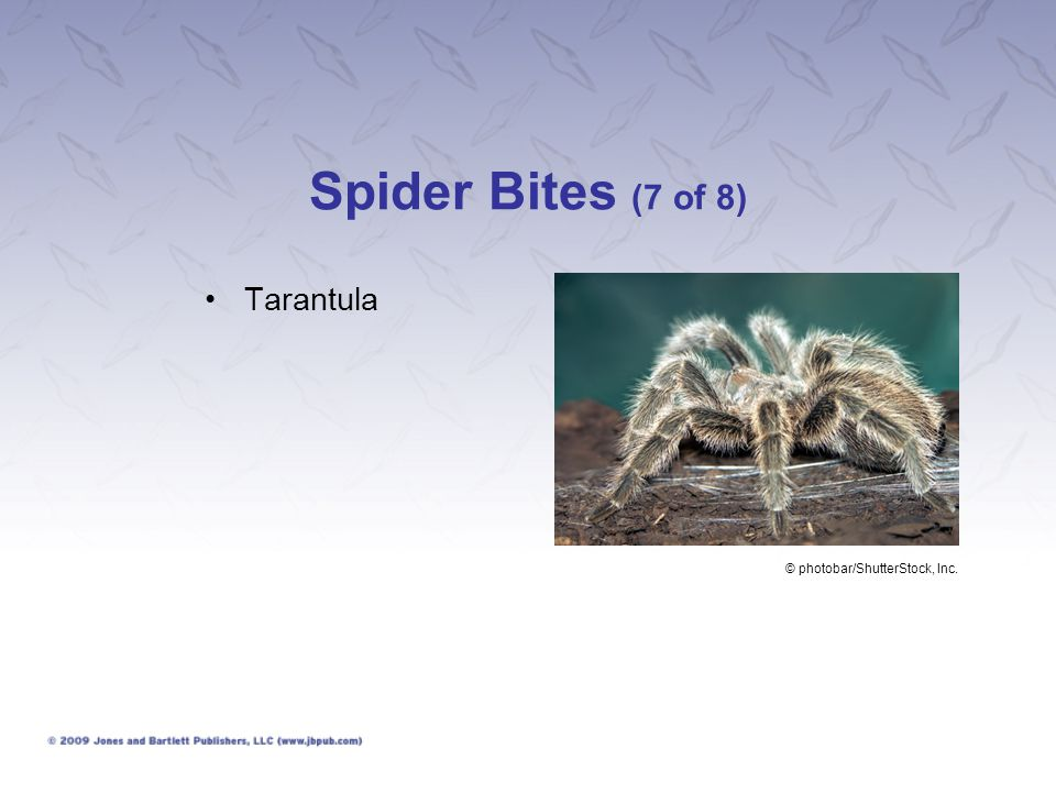 Spider Bites (7 of 8) Tarantula © photobar/ShutterStock, Inc.