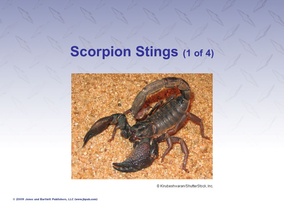 Scorpion Stings (1 of 4) © Kirubeshwaran/ShutterStock, Inc.