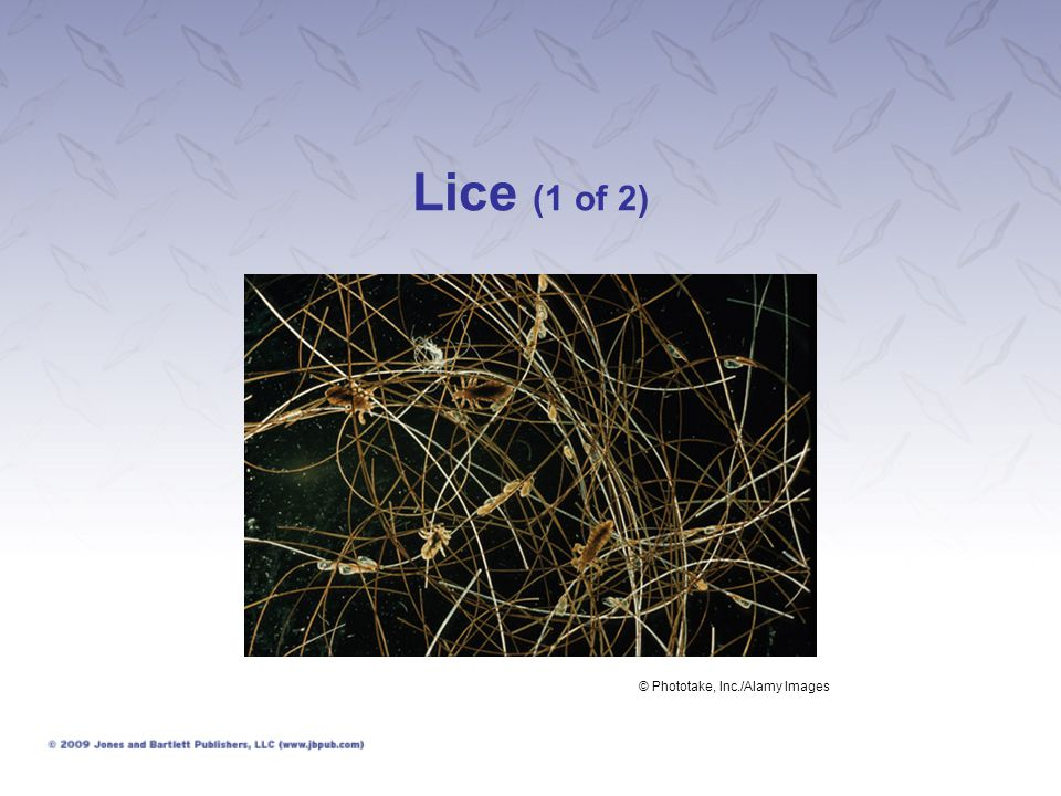 Lice (1 of 2) © Phototake, Inc./Alamy Images
