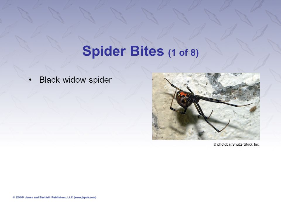 Spider Bites (1 of 8) Black widow spider © photobar/ShutterStock, Inc.