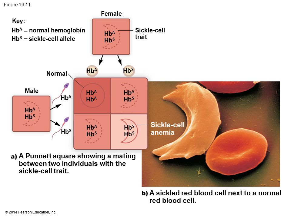 A sickled red blood cell next to a normal red blood cell.