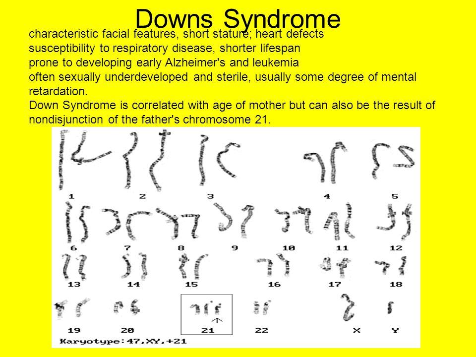 Downs Syndrome characteristic facial features, short stature; heart defects. susceptibility to respiratory disease, shorter lifespan.