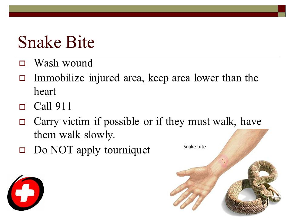 Snake Bite Wash wound. Immobilize injured area, keep area lower than the heart. Call 911.