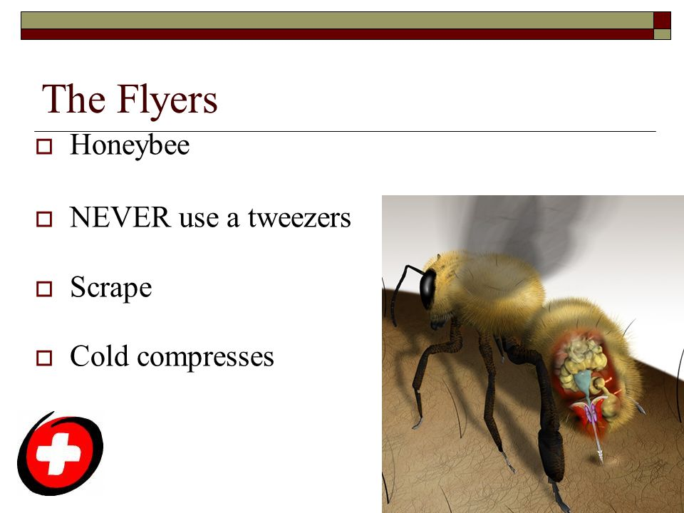The Flyers Honeybee NEVER use a tweezers Scrape Cold compresses