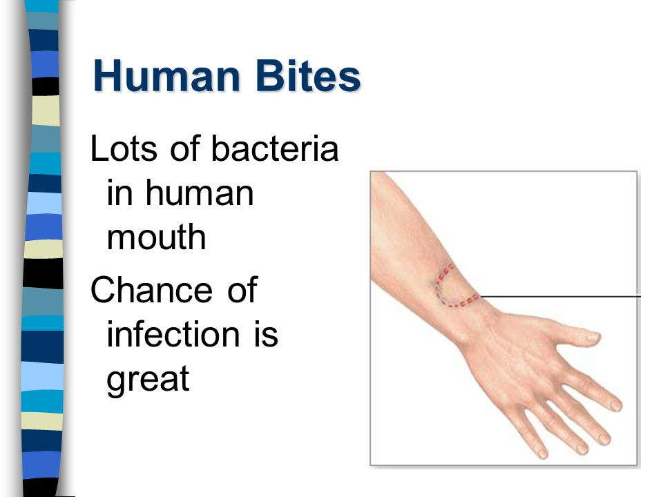 Human Bites Lots of bacteria in human mouth