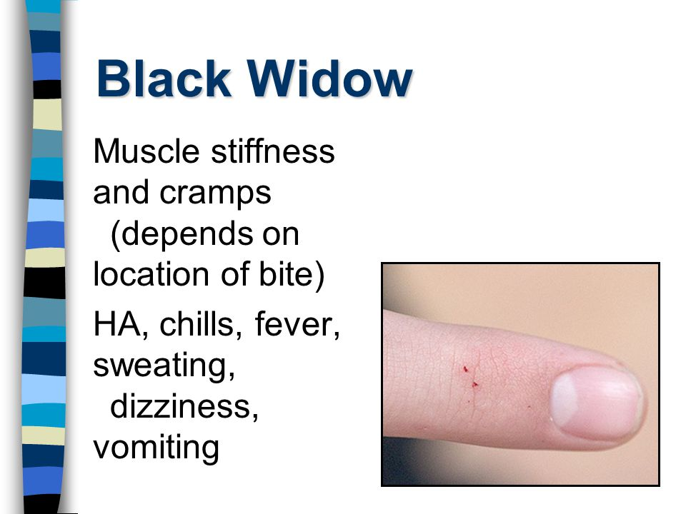 Black Widow Muscle stiffness and cramps (depends on location of bite)