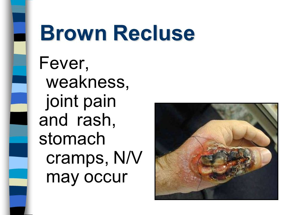 Brown Recluse Fever, weakness, joint pain and rash, stomach cramps, N/V may occur