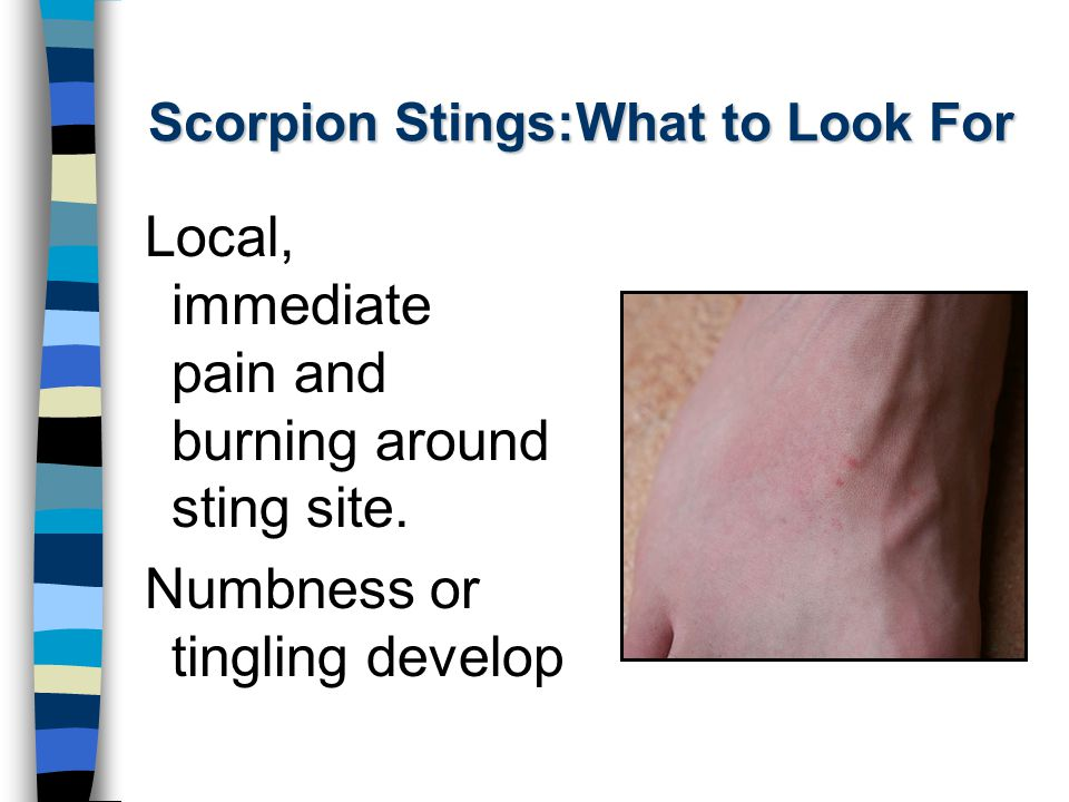 Scorpion Stings:What to Look For