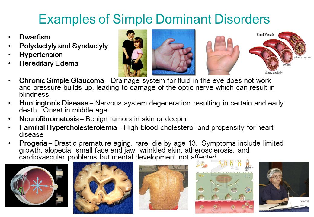 Examples of Simple Dominant Disorders