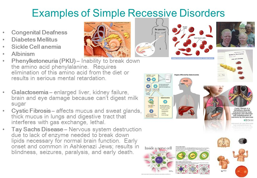 Examples of Simple Recessive Disorders