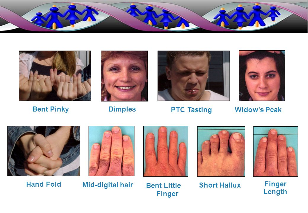 Bent Pinky Dimples. PTC Tasting. Widow's Peak. Hand Fold. Mid-digital hair. Bent Little. Finger.
