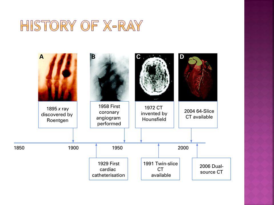History of X-RAY