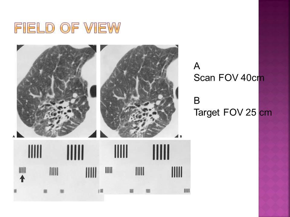 Field of view A Scan FOV 40cm B Target FOV 25 cm