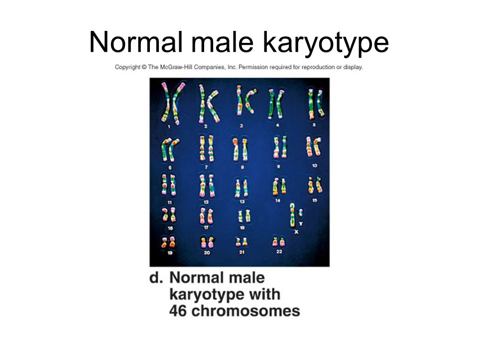 Normal male karyotype Here is a karyotype of a normal male with 46 chromosomes.