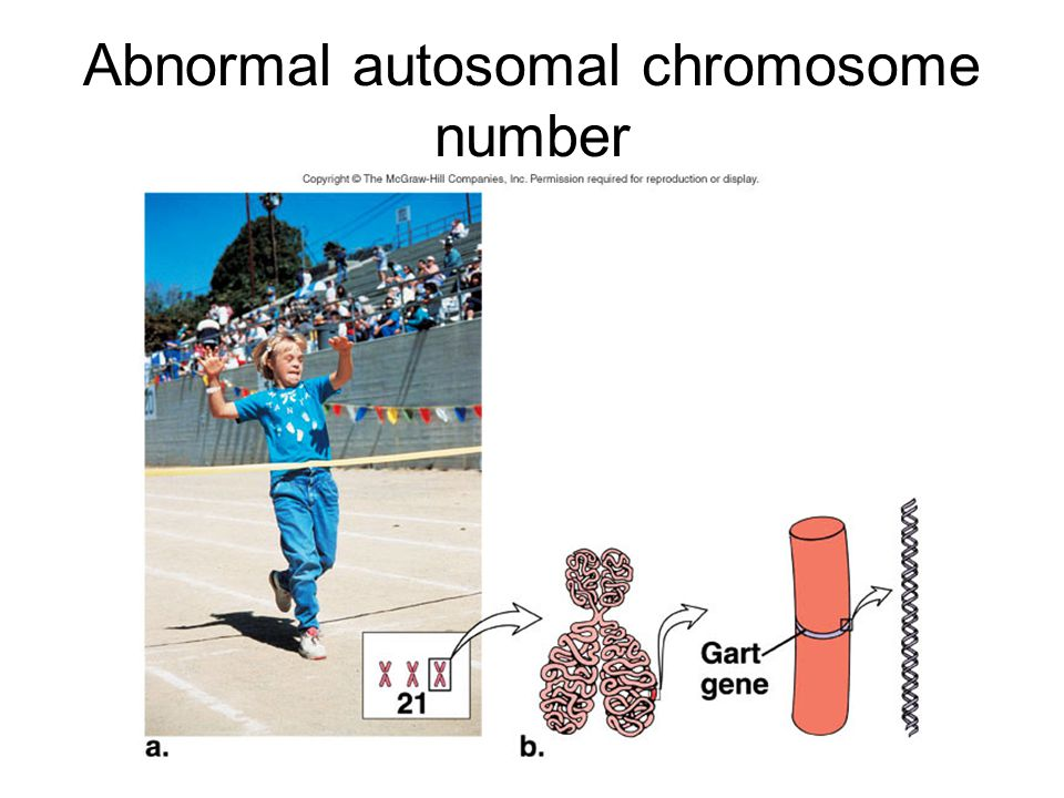 Abnormal autosomal chromosome number