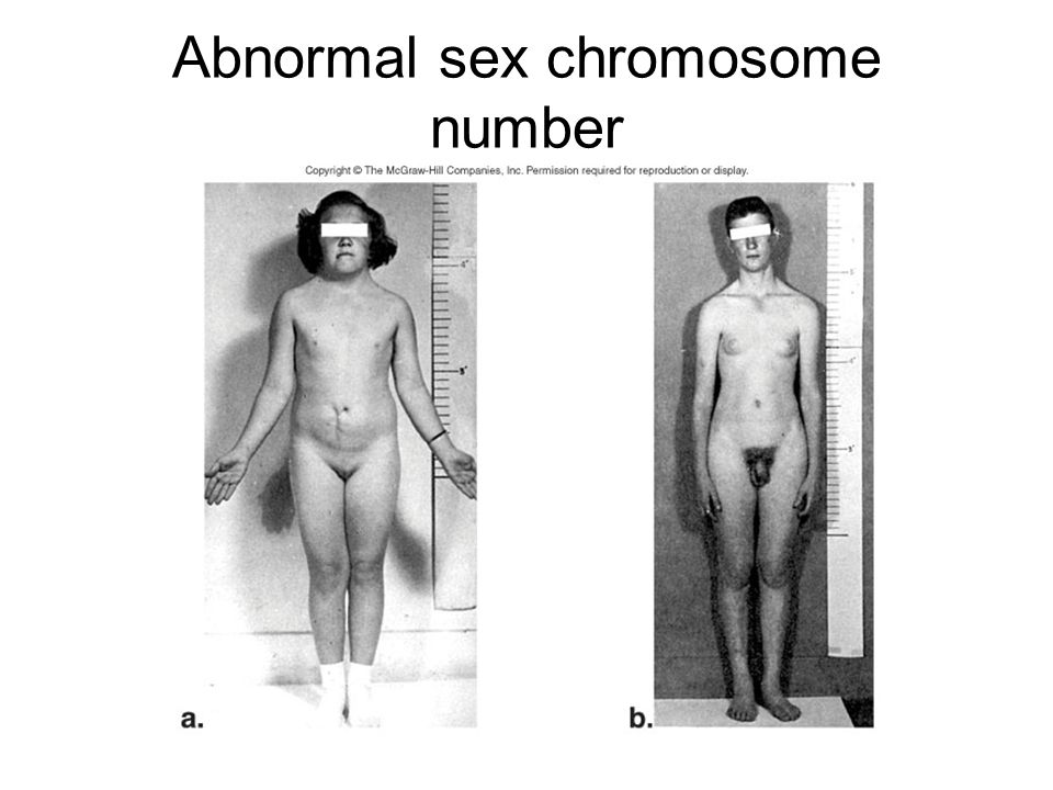 Abnormal sex chromosome number