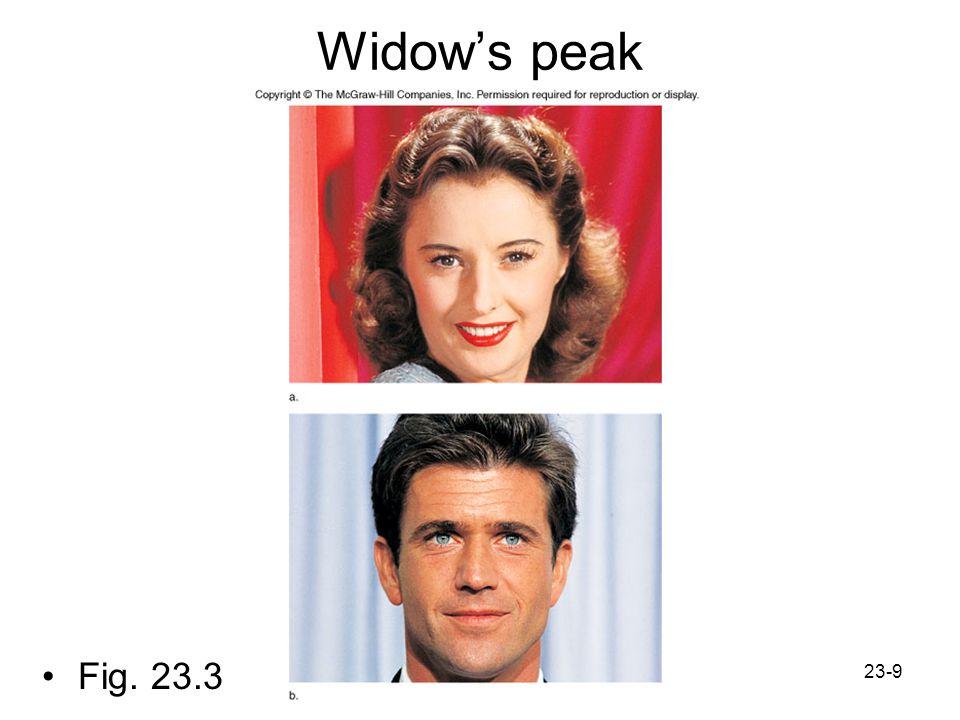 Widow's peak Fig. 23.3