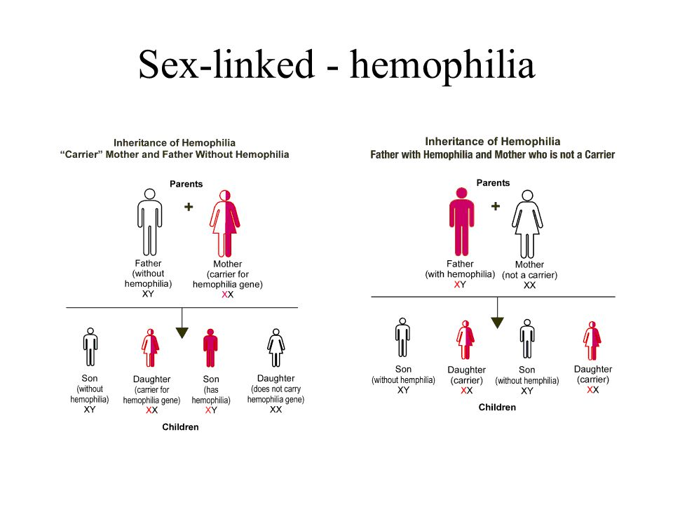 Sex-linked - hemophilia