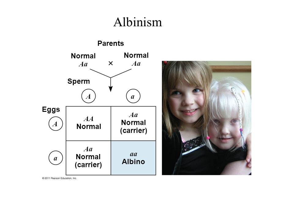 Albinism Parents Normal Aa Normal Aa Sperm A a Eggs Aa