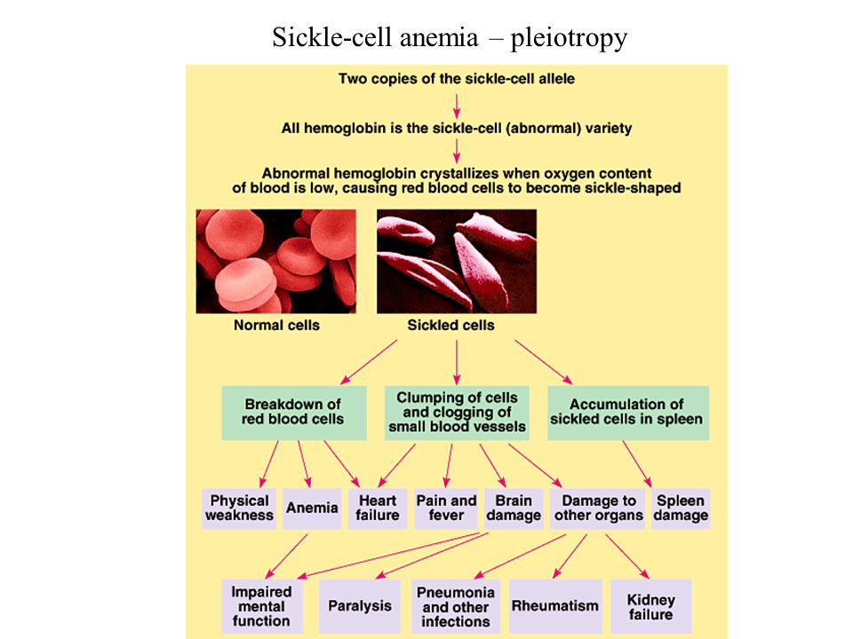 Sickle-cell anemia – pleiotropy