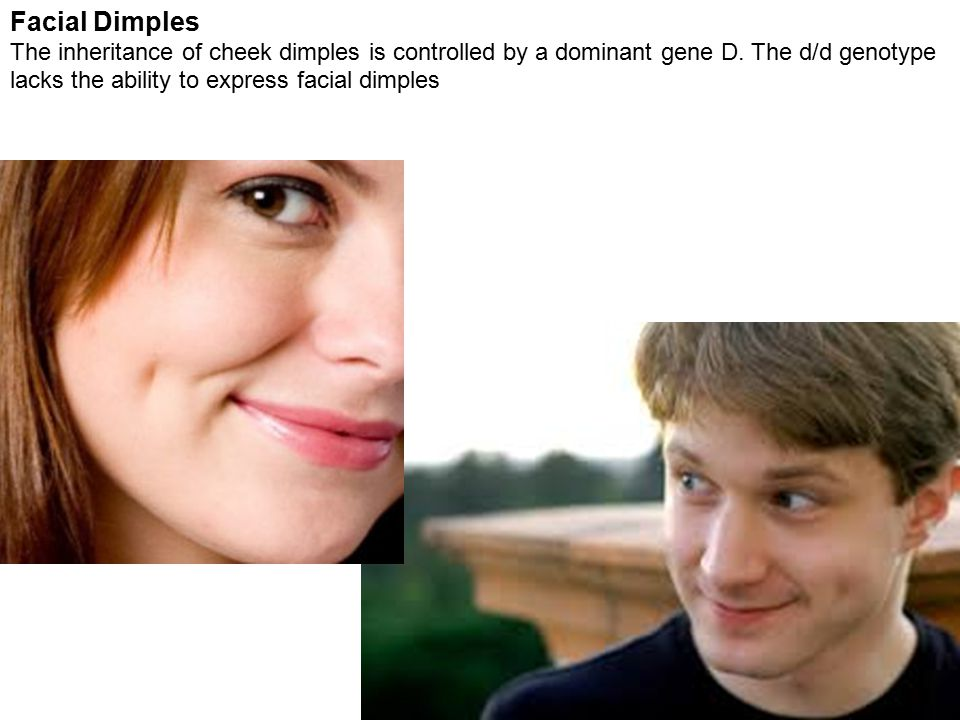 Facial Dimples The inheritance of cheek dimples is controlled by a dominant gene D.