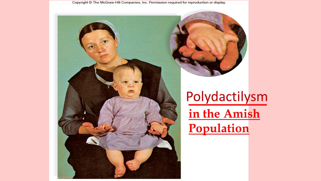 Polydactilysm _____________ in the Amish Population 9