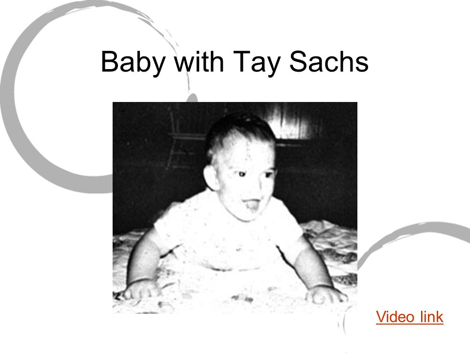 Baby with Tay Sachs Video link