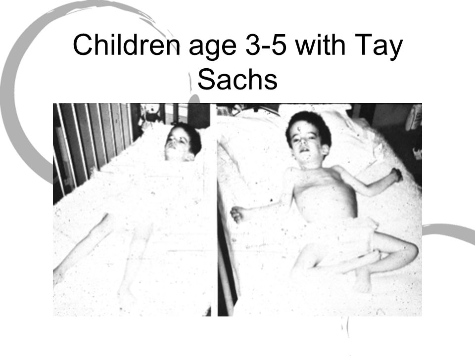 Children age 3-5 with Tay Sachs
