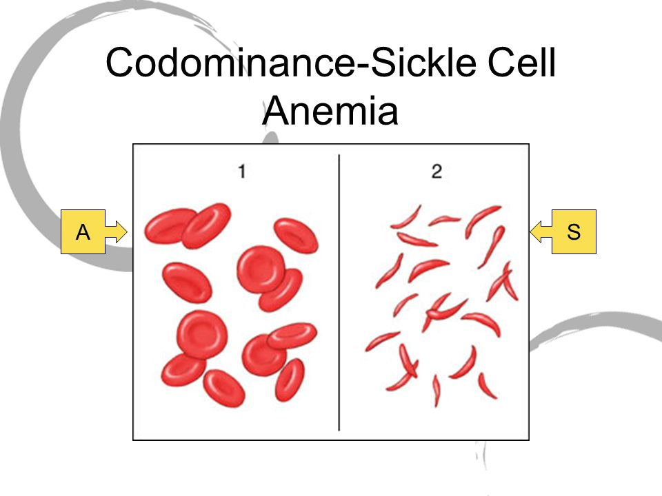 Codominance-Sickle Cell Anemia