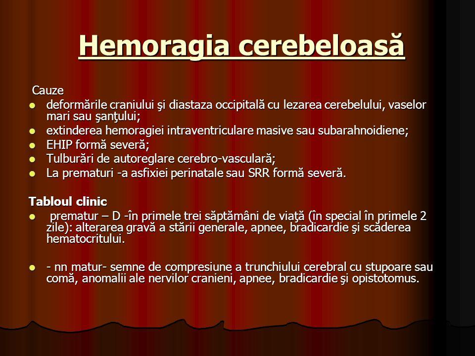 Hemoragia cerebeloasă