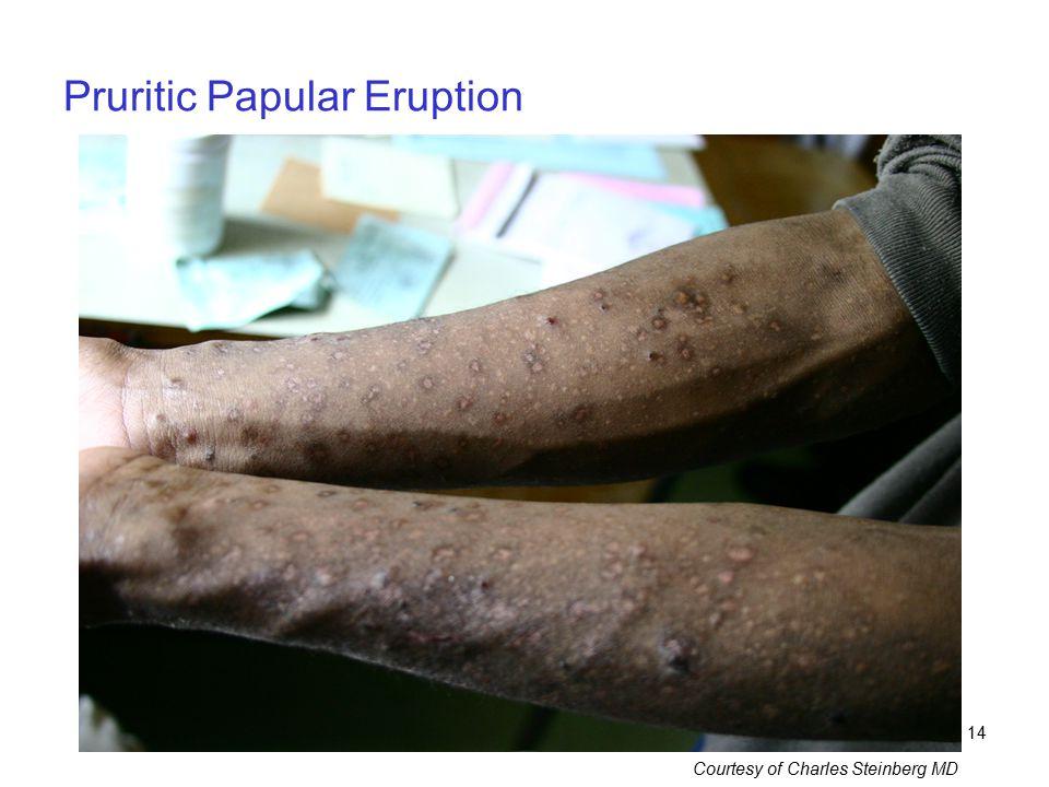 Pruritic Papular Eruption