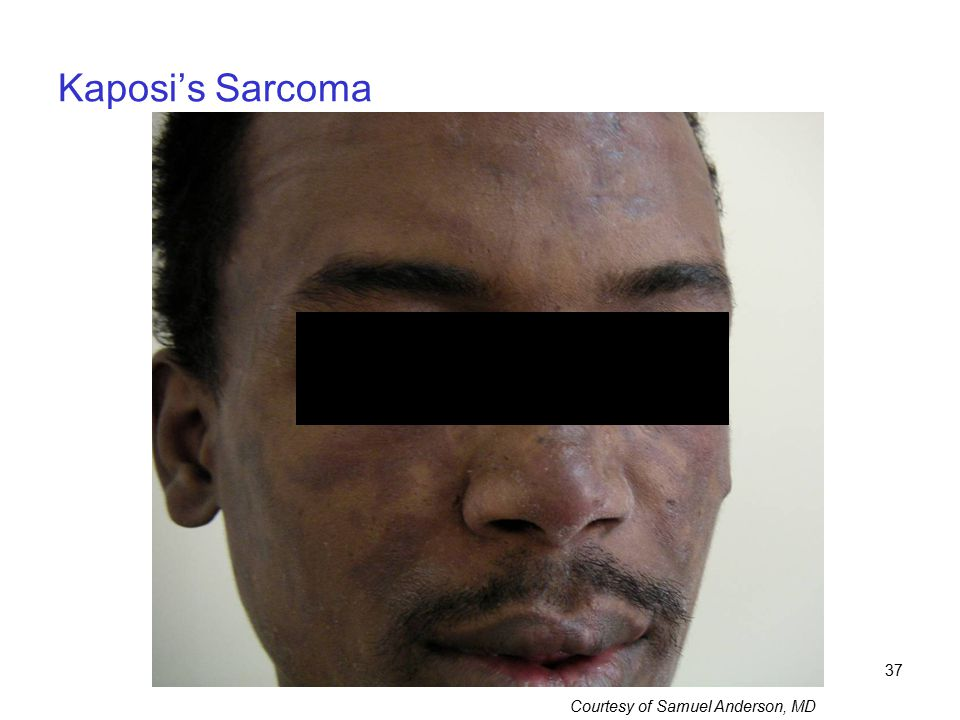 Kaposi's Sarcoma This 32 year-old man presented with extensive dark macular lesions on face, trunk, and back.