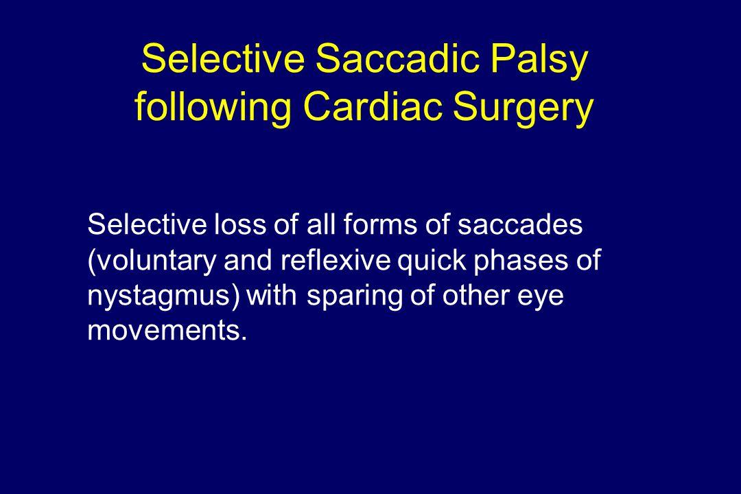 Selective Saccadic Palsy following Cardiac Surgery