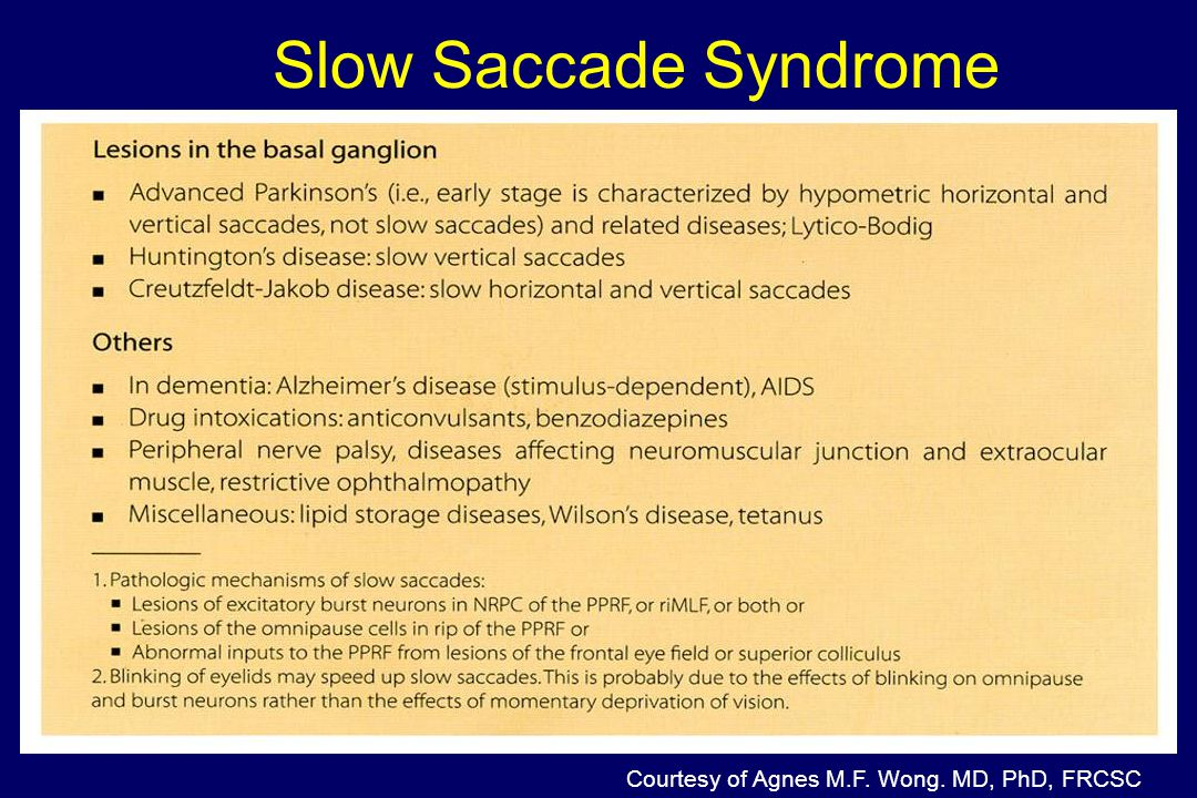 Slow Saccade Syndrome Courtesy of Agnes M.F. Wong. MD, PhD, FRCSC